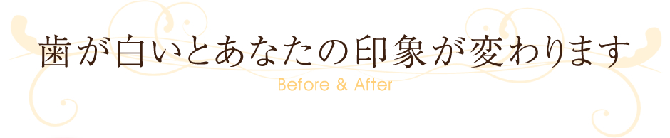 ~Before&After~歯が白いとあなたの印象が変わります