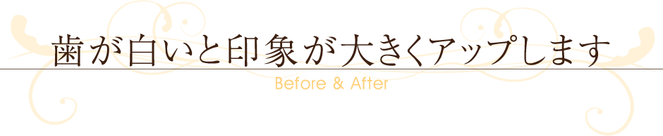 ~Before&After~歯が白いと印象が大きくアップします